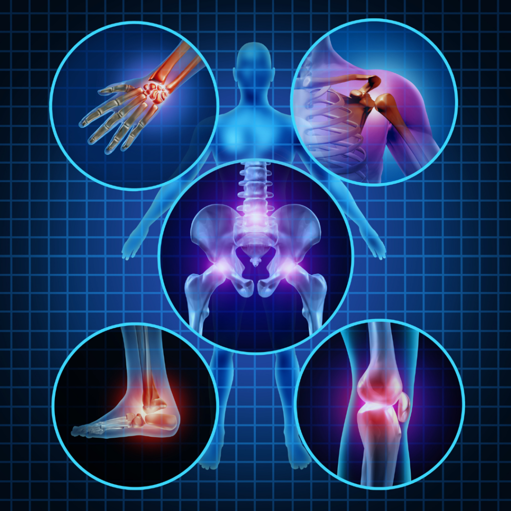 joints suffering inflammation